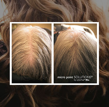 Female hair loss additions integration minneapolis