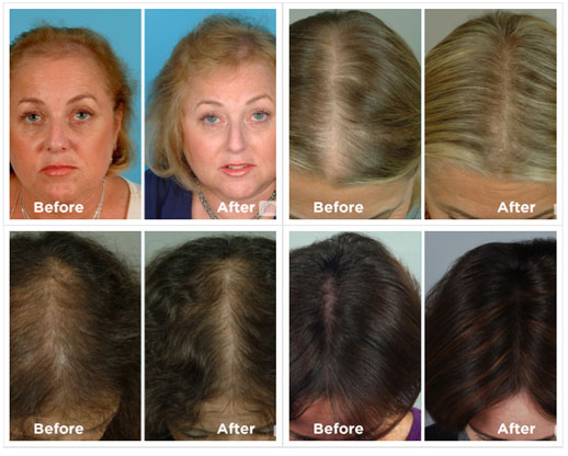 Laser hair loss therapy Minneapolis St Paul MN