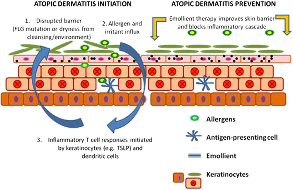 Bild ur  Emollient enhancement of the skin barrier from birth offers effective atopic dermatitis prevention  i Journal of Allergy and Clinical Immunology, 2014