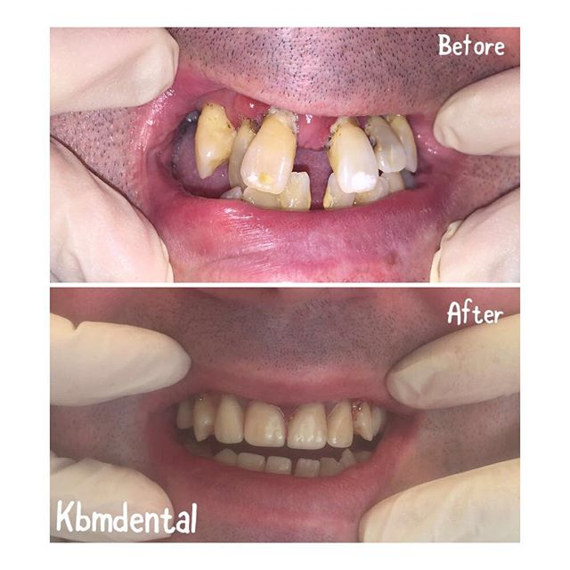 It's never too late to get your perfect smile. Call to book in for a FREE consultation through your prsi with DR. Riona Gorman