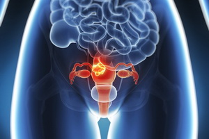 cervical cancer 3.jpg