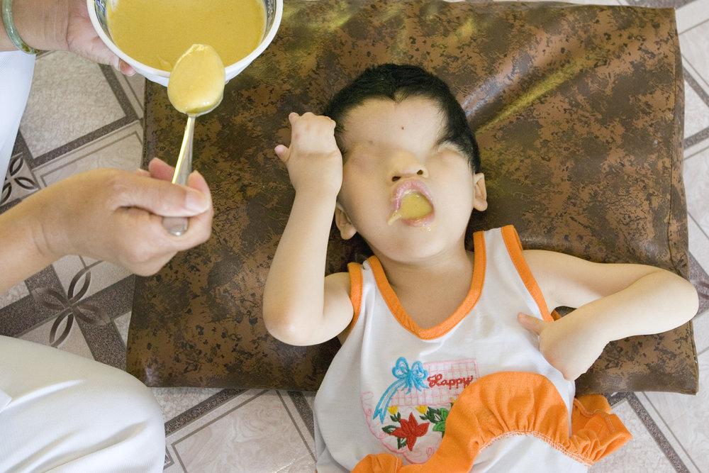 Eyeless Child, Vietnam
