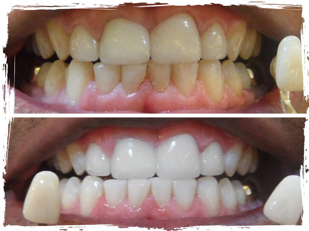 TeethWhitening_BeforeandAfter