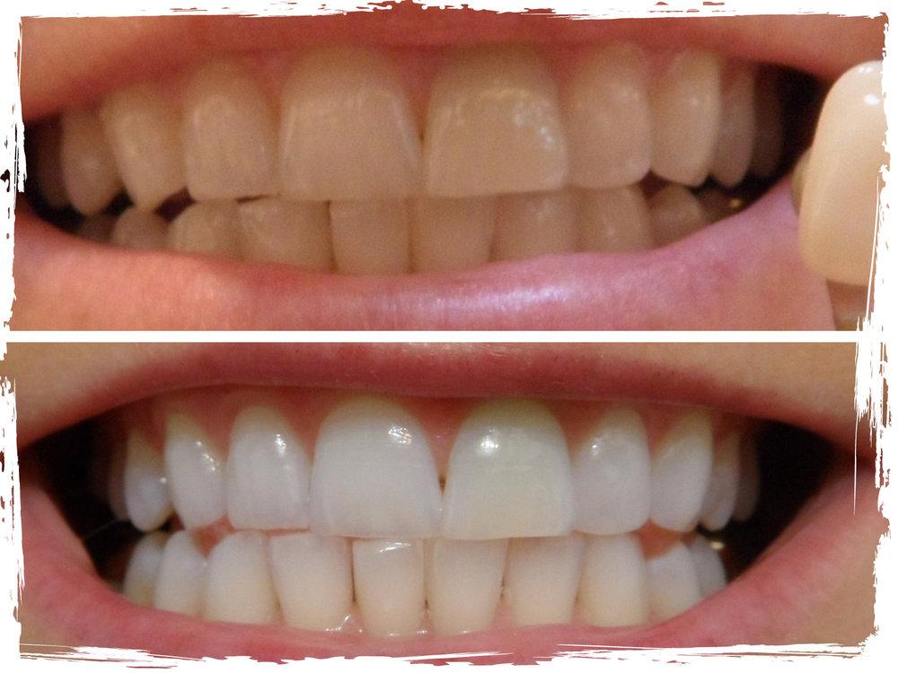 TeethWhitening_BeforeandAfter2