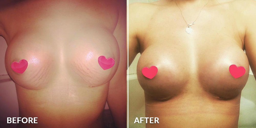 boobie-butter-before-after-2.jpg