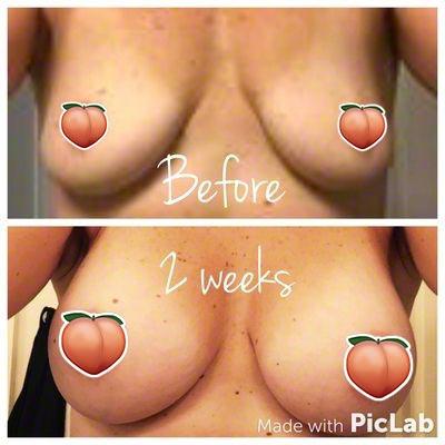 jessica-implants.jpg