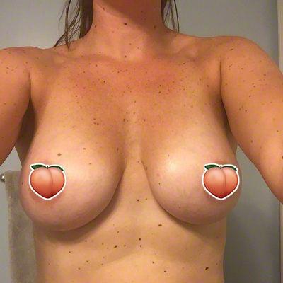 jessica-implants2.jpg