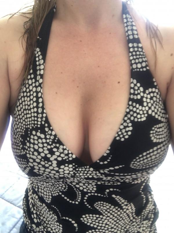 brookes-breast-implants-1-e1460975716598.jpg