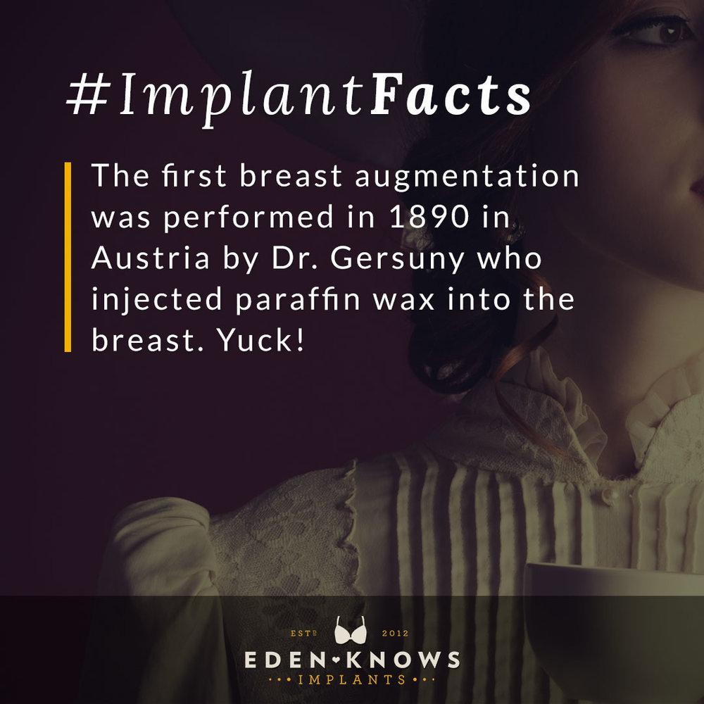 The first breast augmentation was performed in 1890 in Austria by Dr. Geruny who injected paraffin wax into the breast. Yuck!