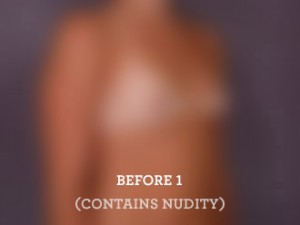 Tubular Breasts Before Augmentation