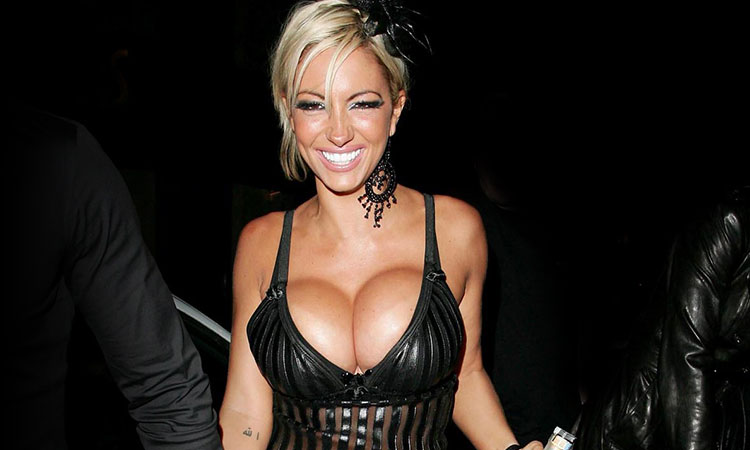 Huge Breast Implants