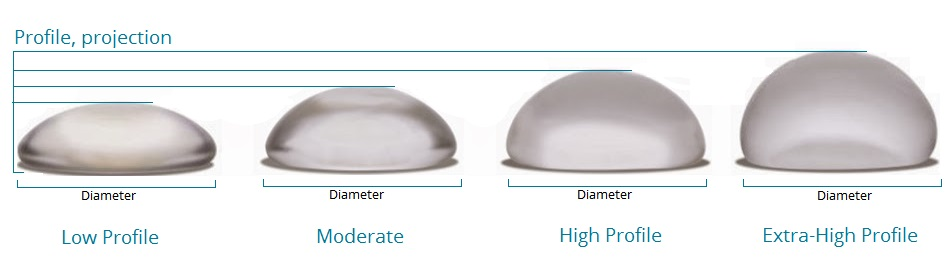 different breast implant profiles
