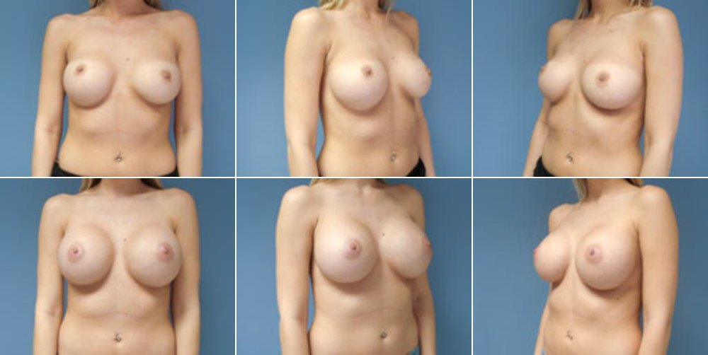 Dr. Revis Internal Bra Before & After Photo