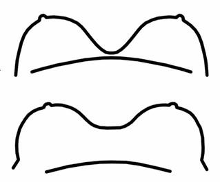 breast augmentation complication symmastia