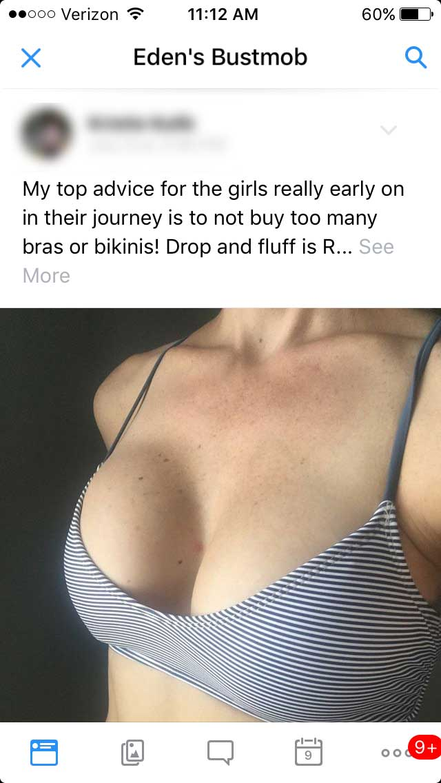 bustmob-just-breast-implants-forum-1.jpg