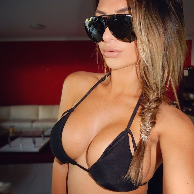 Rosanna Arkle Breast Implants