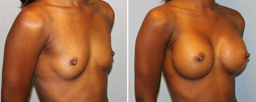 breast-implants-before-after-raleigh-3.jpg