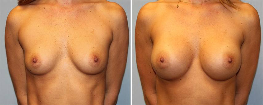breast-implants-before-after-raleigh-4.jpg
