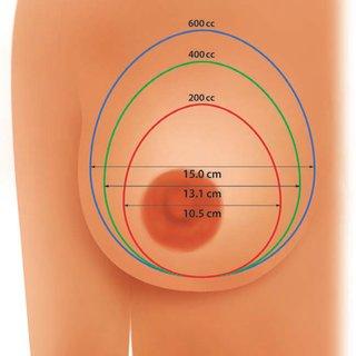 BWD implants