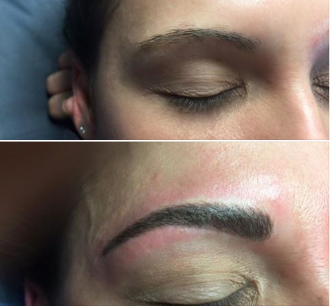 💉Procedure:Permanent Eyebrows 🎯Purpose: Reshape sparse brows 👓How it works: implanting pigments 🎊:Results: immediately 📝Note: Individual Results May Vary 📍Location: 541 N Greenwood Ave Ft. Smith AR. 72901 ✍️Technique: Microbladding 😴Anesthesia: Topical ⏰Time it takes: 1 hour 📅Recovery: None ⏲Last: Permanent 💣Caution: Must Be Preformed By Experienced Technician 😨Pain Level: Mild 💰Average Cost: Varies In Cost 💁Private Consultation: Free