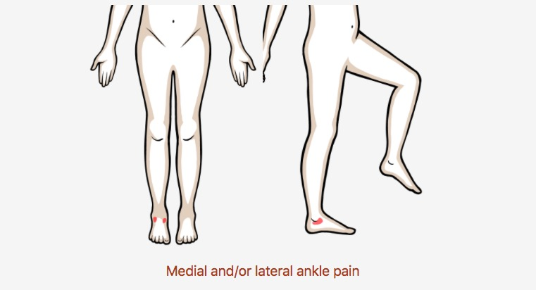Medial and/or lateral ankle pain