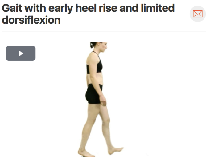 For lower extremity injuries it is important to watch how your patient walks, this can tell you a lot about their movement patterns. A  common movement fault  seen in people with plantar fasciitis is a lack of dorsiflexion. Force is not evenly distributed through the foot when the ankle does not move through it's full range of motion. (Click image to watch 1-2 minute video)