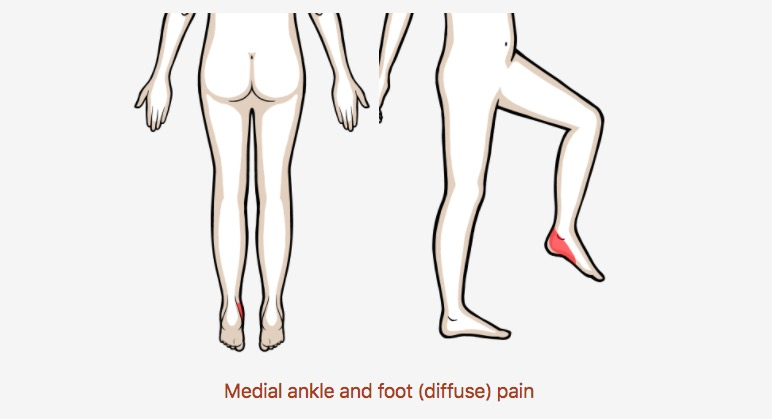 Medial ankle and foot (diffuse) pain