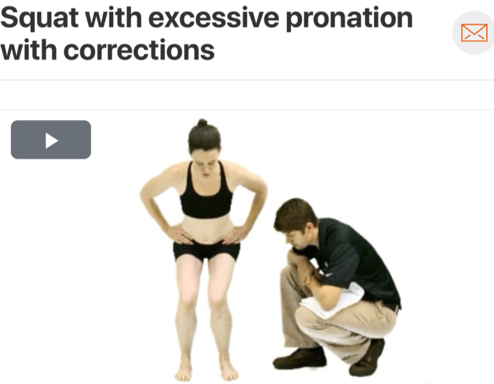 Motor coordination both proximally and distally can contribute to excessive pronation. A  squat assessment  can also double as a therapeutic exercise by cueing the patient to maintain a neutral mid foot position while performing the movement! (Click image to watch 1-2 minute video)