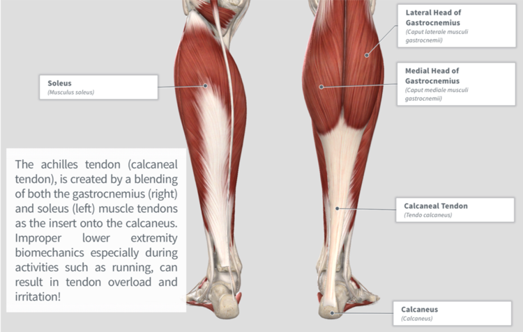 Achilles Tendinopathy — PhysioU