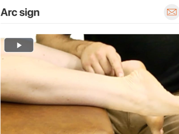 The  arc sign  is and excellent assessment to help rule in presence of achilles tendon pathology due to it's high specificity rating!  (Click image to watch 1-2 minute video)