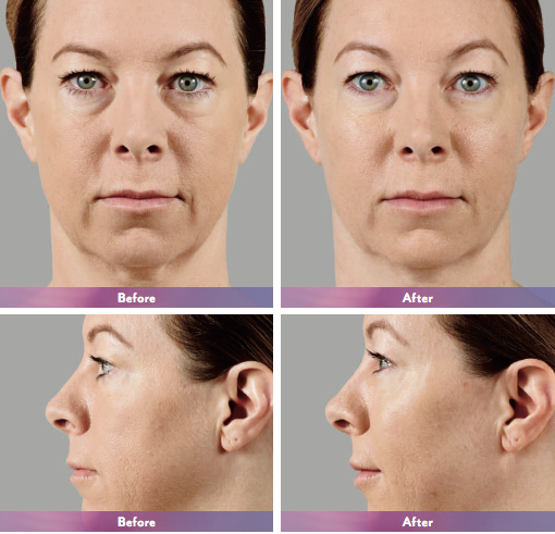 Juvederm Voluma XC - Before & After