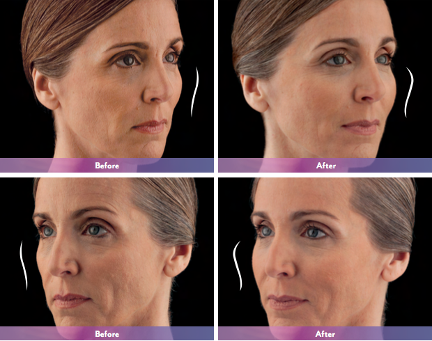 Actual patient. Results may vary. Unretouched photos taken before treatment and 1 month after treatment with JUVÉDERM VOLUMA® XC. A total of 3.5 mL of JUVÉDERM VOLUMA® XC was injected into the cheek area.