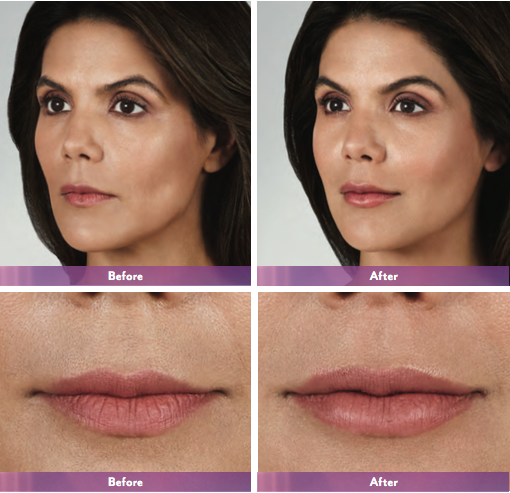 Actual patient. Results may vary. Unretouched photos taken before treatment and 1 month after treatment. A total of 1.2 mL of JUVÉDERM VOLBELLA® XC was injected into the lips (vermilion body and philtral columns).