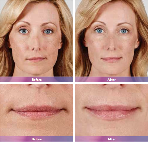 Actual patient. Results may vary. Unretouched photos taken before treatment and 1 month after treatment with 1.5 mL of JUVÉDERM® Ultra XC in the lips.