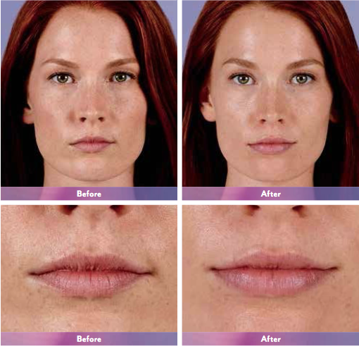 Actual patient. Results may vary. Unretouched photos taken before treatment and 1 month after treatment with 1.2 mL of JUVÉDERM® Ultra XC in the lips.