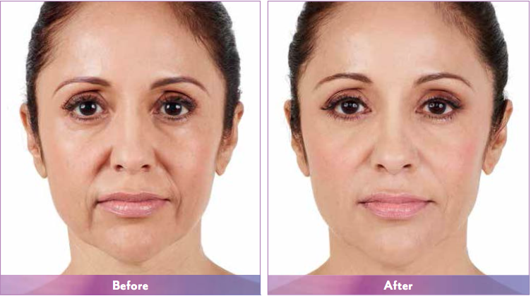 Actual patient. Results may vary. Unretouched photos taken before treatment and 2 weeks after treatment with JUVÉDERM® XC. A total of 3.2 mL of JUVÉDERM® XC was injected into the parentheses, marionette, and corner lines.