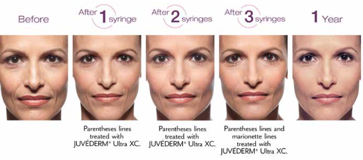 Actual patient. Results may vary. Unretouched photos taken before treatment, after a 3-syringe treatment, and 1 year after treatment with JUVÉDERM® XC. One syringe = 1.0 mL of JUVÉDERM® XC. A total of 3.0 mL of JUVÉDERM® XC was injected into the parentheses and marionette lines.