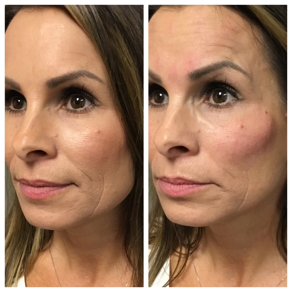 two syringes of juvederm voluma - Cheeks injected by Terry Selgo, R.N.