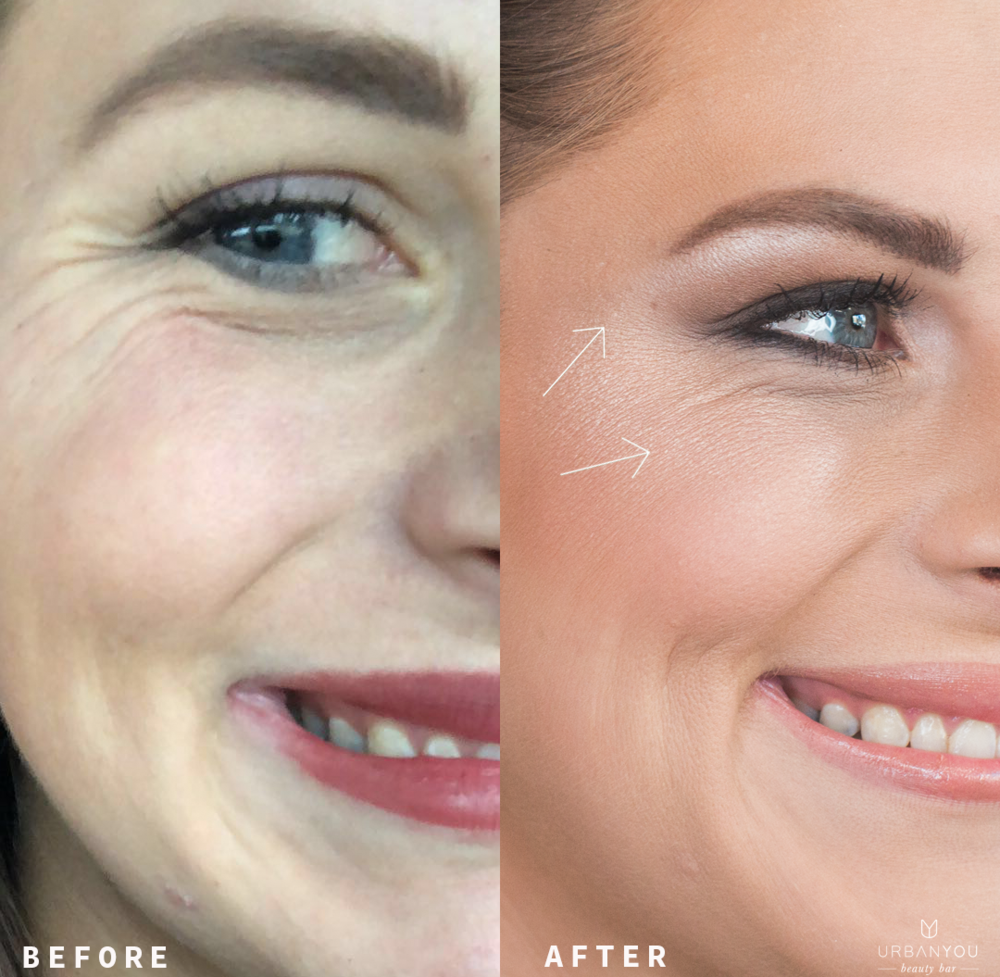 botox® - Crows feet injected by Stephanie Brown, PA-C