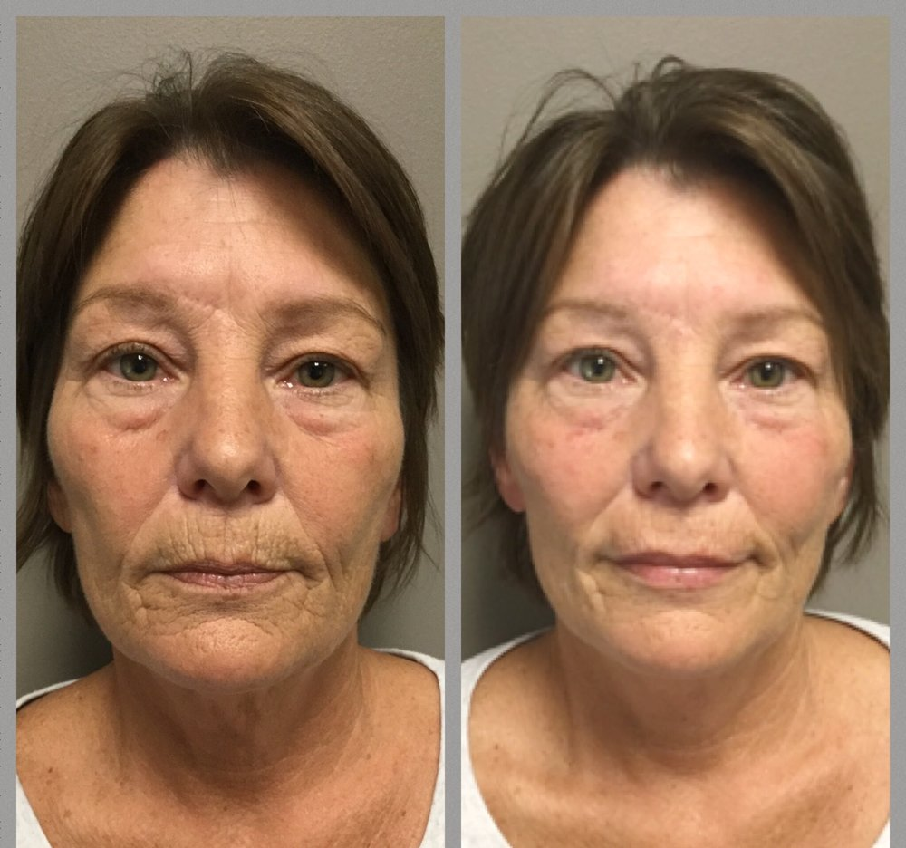 Total facial rejuvenation - Botox®, Voluma, Vollure, & Ultra Plus injected by Terry Selgo, R.N.