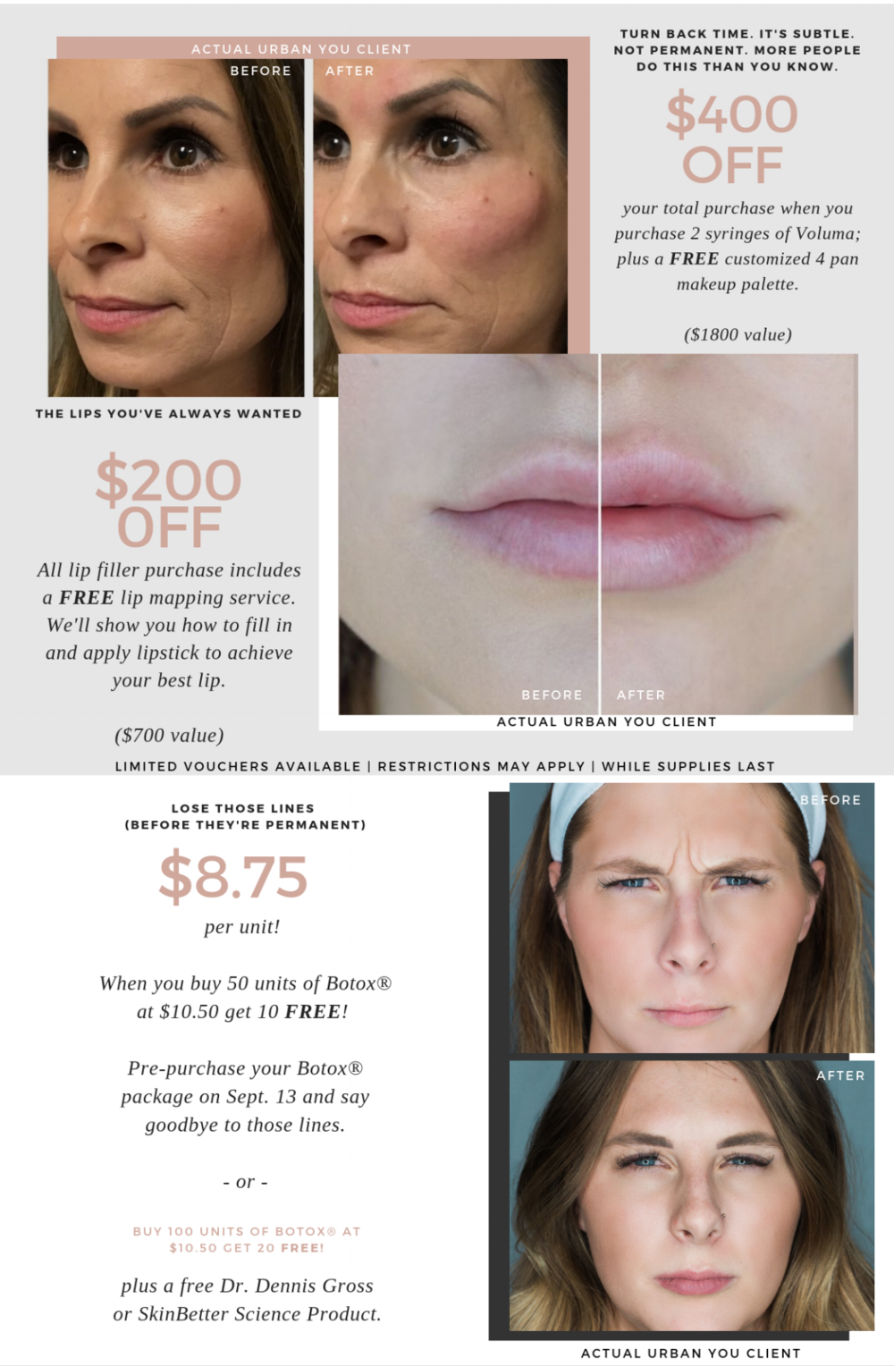 Flawless Fall - Injectables