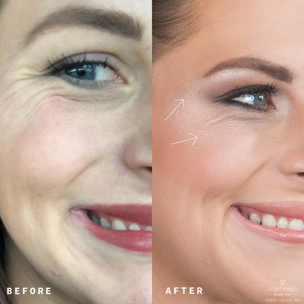 Botox-1.png