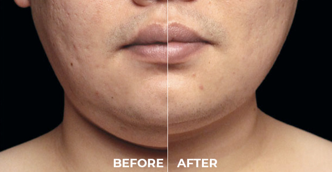 CoolSculpting Before and After on neck area.