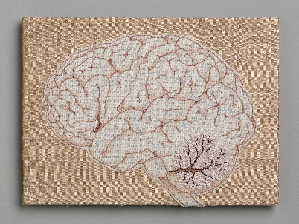No.4 Brain