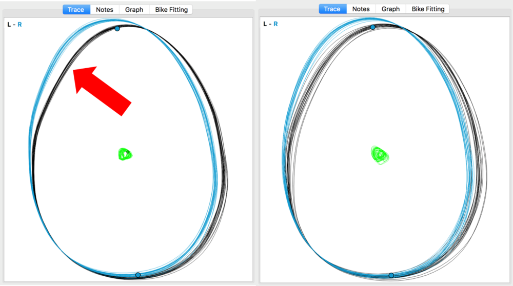 Fig 6. the Bioracer Motion software shows more similar ankle tracing, when comparing left and right.