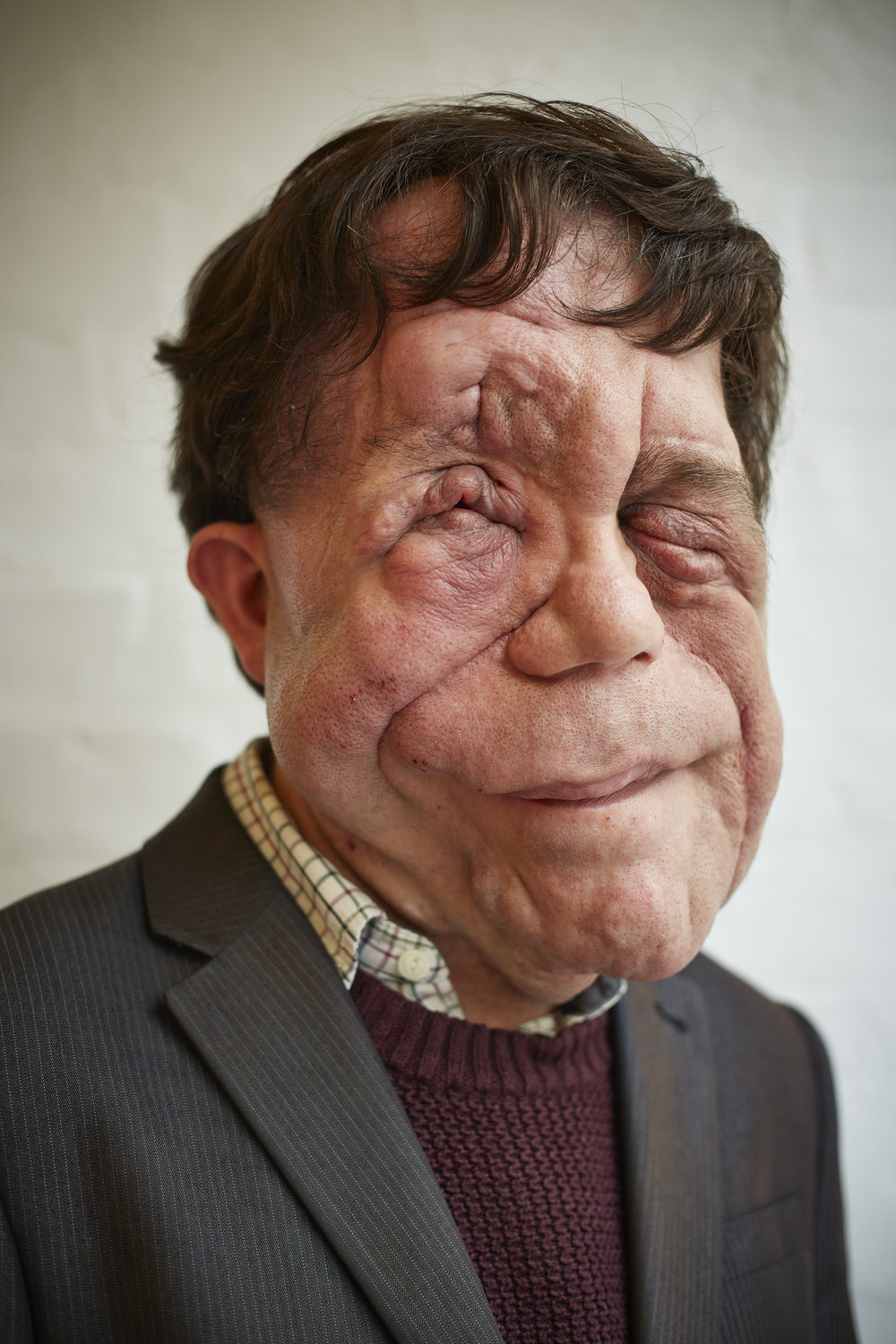 Adam Pearson - Award-winning campaigner, actor and presenter.