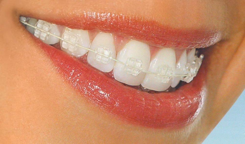 clear braces metro dental.jpg