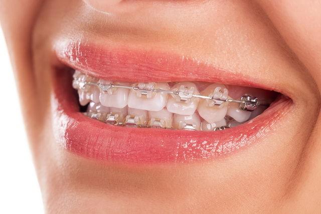 clear braces full mouth metro dental.jpg