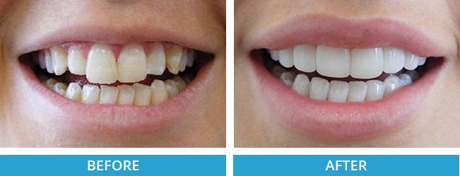 composite veneers before and after.jpg