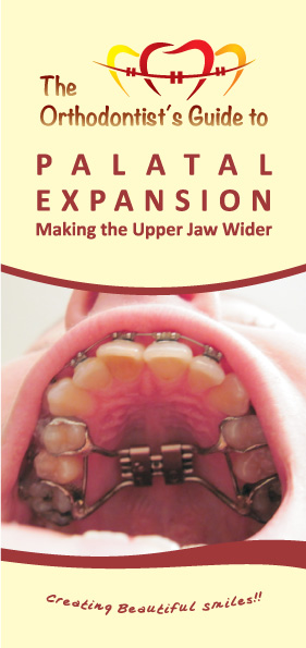 ortho-palatal-expansion-brochure-1.jpg